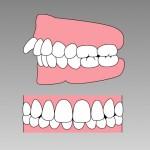 歯科矯正についてのご質問