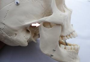顎間接脱臼
