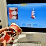 最新の歯科機器